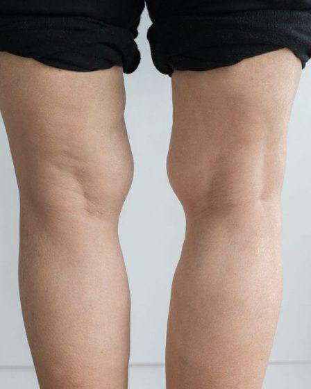 ginocchio valgo esercizi correttivi